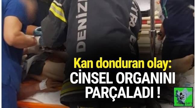 Denizli'de motorlu makineyle sunta kesen bir kişi cinsel organını ve bacaklarının üst kısmını parçaladı.