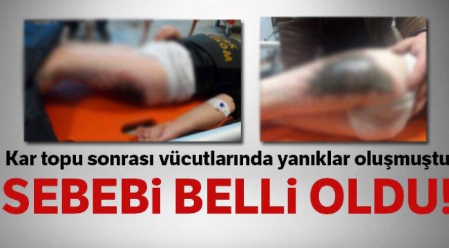 Afyonkarahisar'da öğrencilerin vücutlarındaki yanıkların sebebi belli oldu
