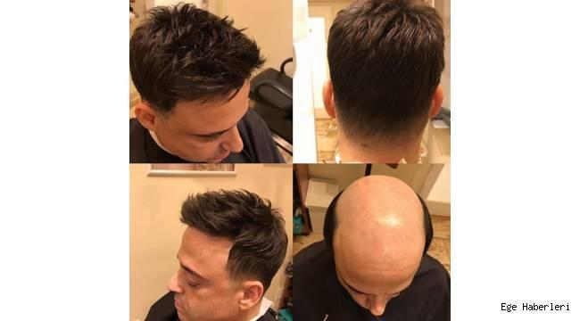 Işıldayan Protez Saçın Kaliteli Adresi Tap Hair